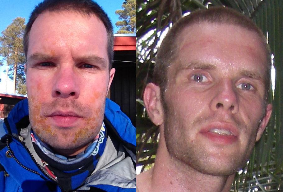 Til venstre - allergisk reaktion på penicillin + børnesår Til højre - efter 3 dages adventurerace i Brasilien. Tabte 5 kg på 5 dage i det løb.